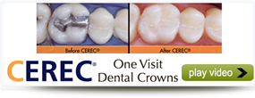 One Day Dental Crowns